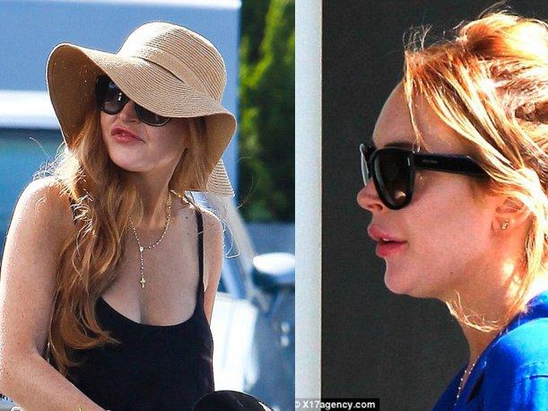 Lindsay Lohan es criticada tras &ldquo;abusar&rdquo; de las inyecciones de col&aacute;geno