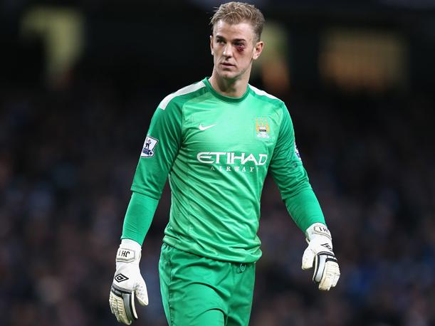 Premier League: Así acabó el ojo de Joe Hart tras chocar con Cameron Jerome (VIDEO)