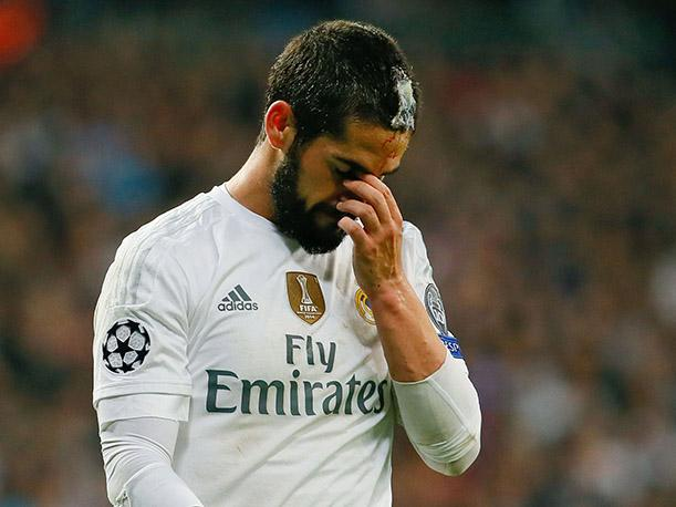 Real Madrid Así le engraparon la cabeza a Isco (VIDEO)