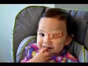 Awesome dad creates custom eye patches for his daughter (PHOTOS)